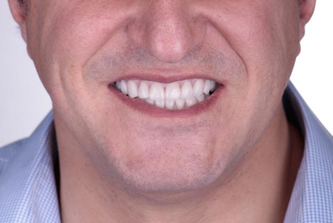 Brackets, Brackets autoligado, Cirugía ortognática, Coronas, Coronas porcelana, Estética dental, Implantes, Rehabilitación completa, y Sobremordida