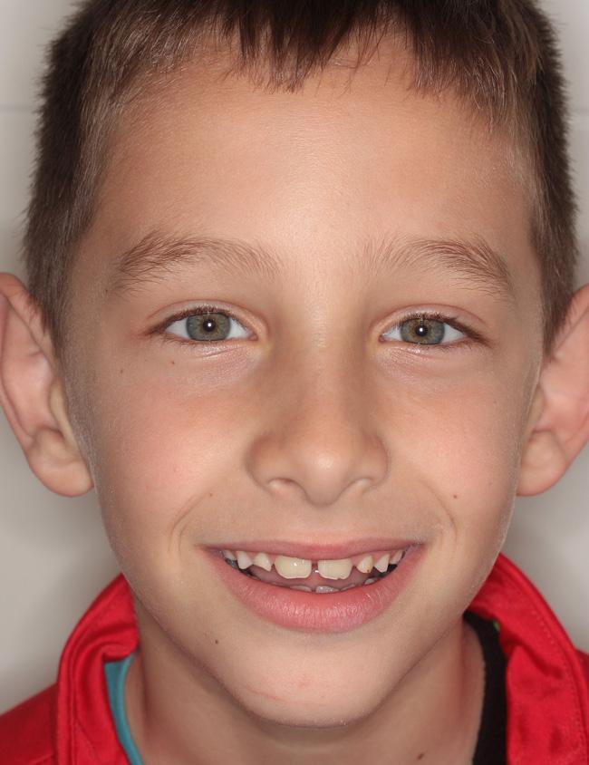 Clase III, Mordida cruzada, Ortodoncia, y Ortopedia infantil