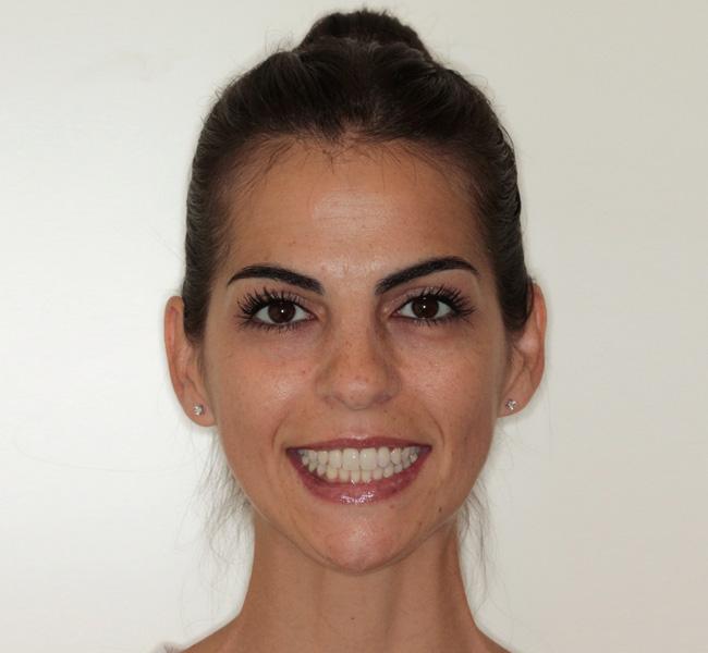Apiñamiento, Estética dental, Invisalign, Mordida abierta, y Ortodoncia