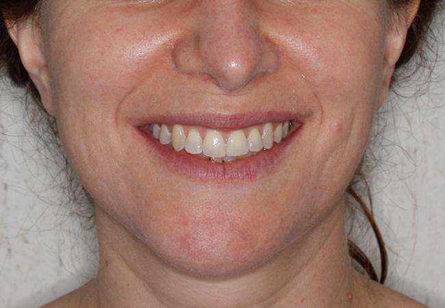 Apiñamiento, Brackets, Brackets autoligado, Cirugía ortognática, Clase III, Mordida abierta, y Ortodoncia
