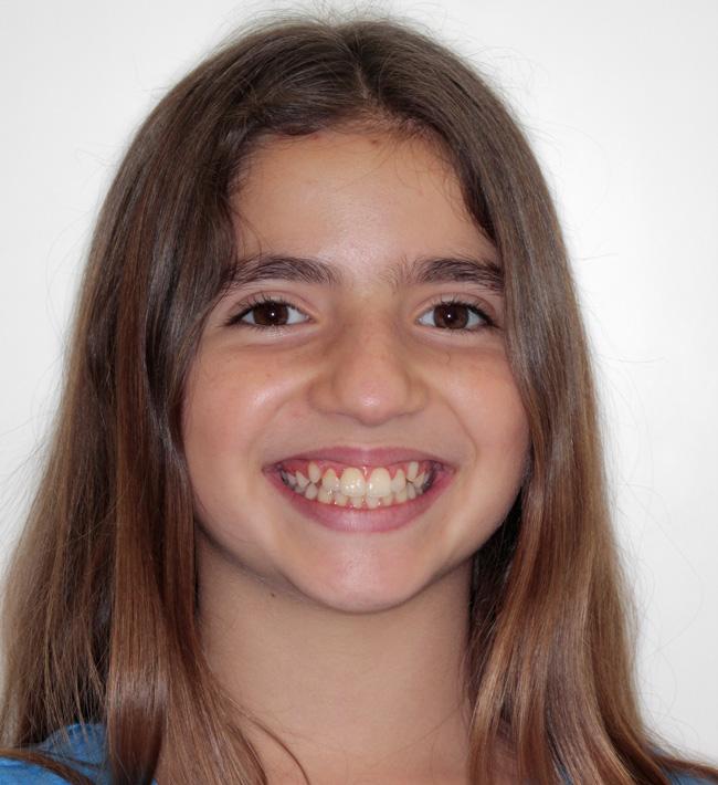 Apiñamiento, Mordida abierta, Ortodoncia, y Ortopedia infantil
