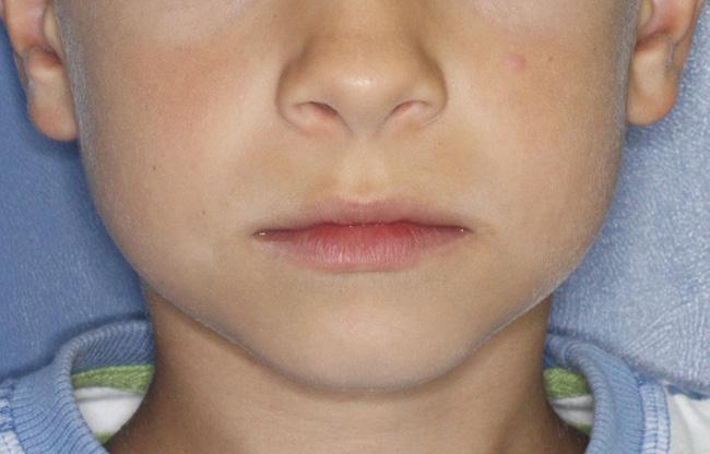 Mordida cruzada, Ortodoncia, y Ortopedia infantil