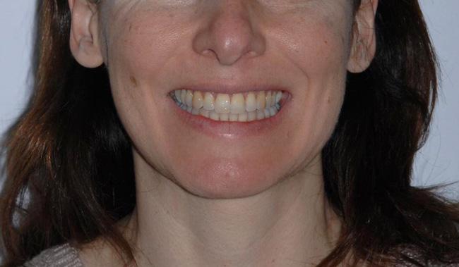 Apiñamiento, Invisalign, y Ortodoncia